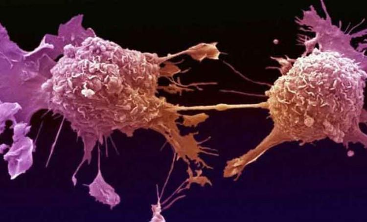 hủy diệt tế bào ung thư